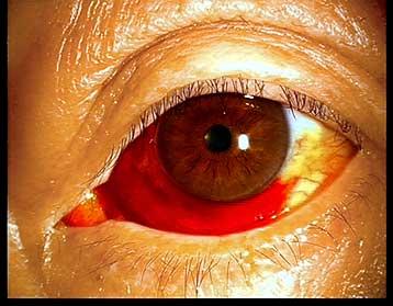 早く治す 目の周り 内出血