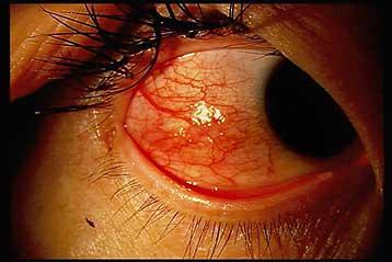 目 の 充血 真っ赤